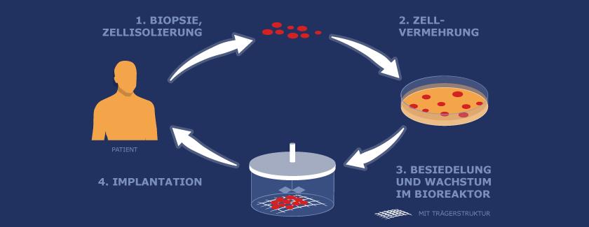 Regenerative Medizin